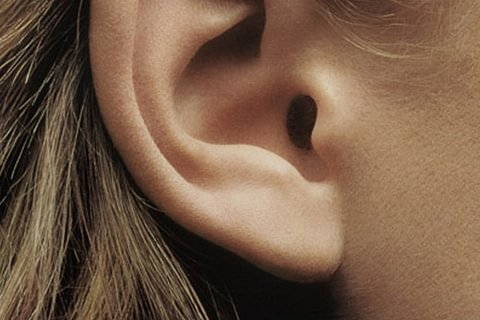 Otoplastie (oreilles décollées)
