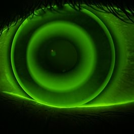 Formstabile Ortho-K (Nachtlinse), Fluoreszenzbild