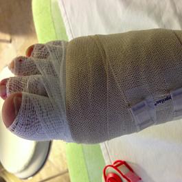 bandagierter fuss