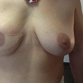 Maquillage permanant des seins APRES