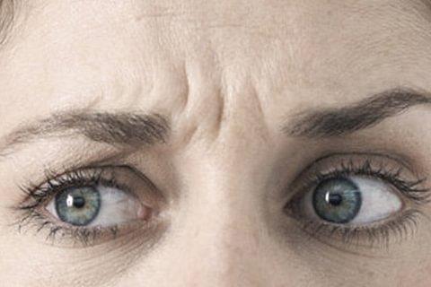Injections de toxine botulique - traitement des rides d'expression