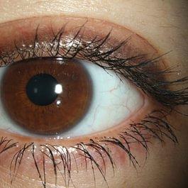 Weiche hydrophile Contactlinse am Auge