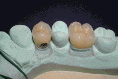 Couronnes et implants