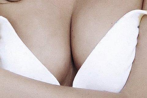 Augmentation mammaire - chirurgie esthétique des seins