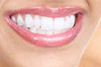 Le blanchiment des dents