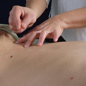 akupunktur basel