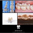 Intarsio, quando un dente è molto rovinato si preferisce alla tradizionale otturazione,il differente materiale la rende la soluzione più sicura e duratura