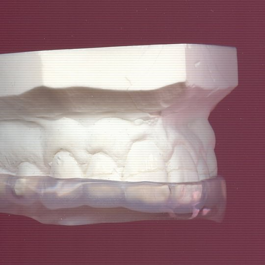 Dentision