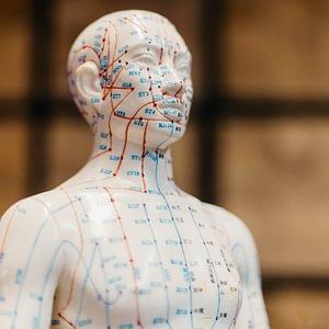 Akupunktur im Dorf