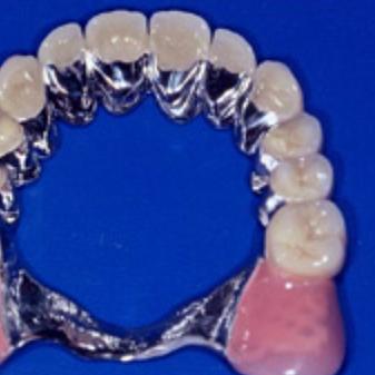 Praxis für Zahnprothetik Philipp Zuberbühler