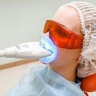 Zahnbleaching für weisse, gesunde Zähne
