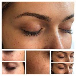 Maquillage permanent : taches de rousseur et grains de beauté