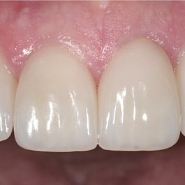 Zahnarztpraxis Dr. Bertschinger /Ästhetische Zahnmedizin
