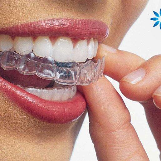 Invisalign- unsichtbare Zahnspange