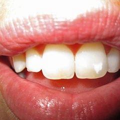 Prothese - Dentaltechnik G.