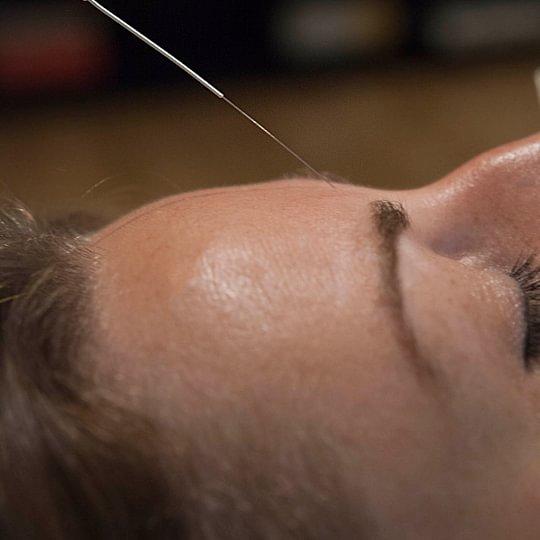 Acupuncture clinique