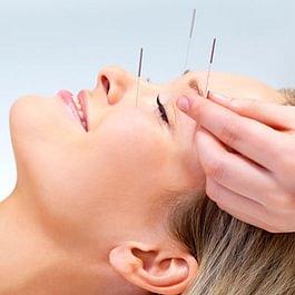 Acupuncture faciale