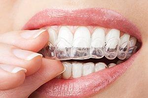 Orthodontie aligneurs transparents Biotech dental