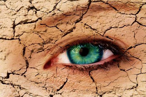 Behandlung bei trockenen Augen (Siccasyndrom)
