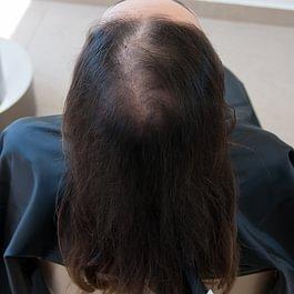 Diradamento femminile prima del trattamento con Metodo CNC di CRLab