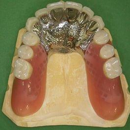 Philipp Zuberbühler Praxis für Zahnprothetik