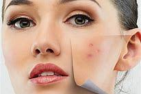 Akne- Narben und unreine Haut
