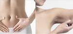 Body: Liposuction | Bauchdeckenstraffung | Oberarmstraffunf | Intimbereich