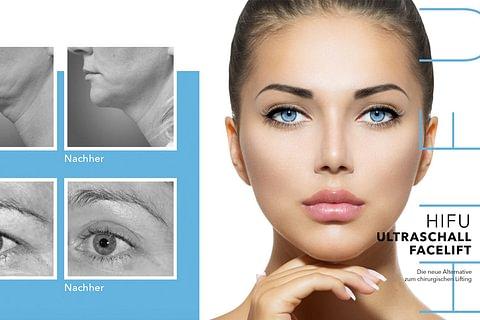 HIFU Facelift Ultraschalltherapie