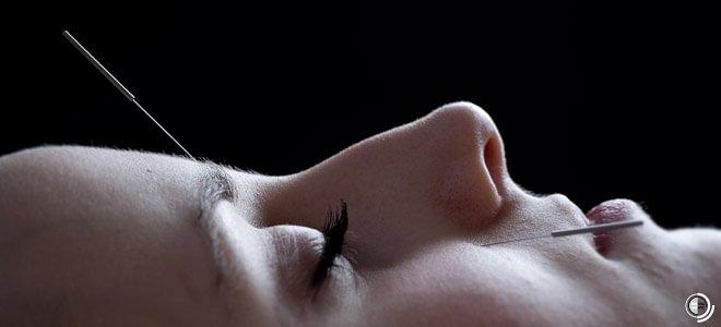 Akupunktur für die Frau
