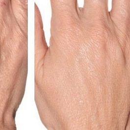 Hände jugendlich gepflegt ohne Flecken und Falten