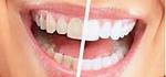 Blanchiment des dents