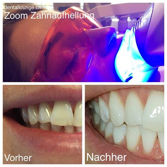 Zoom by Philips Zahnaufhellung