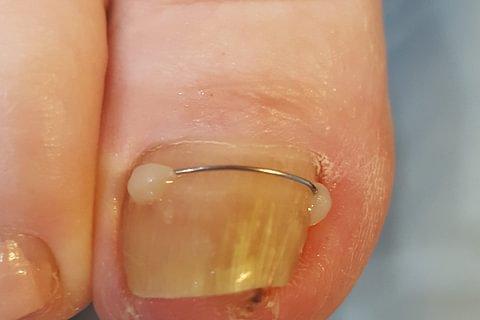 Prothèse anti-ongle incarné