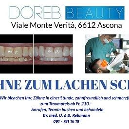 Zahnbleaching zahnschonend und schmerzfrei