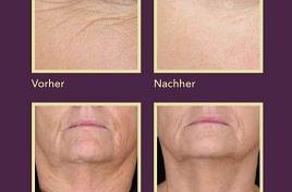 Skinjexion Gesichtsbehandlung