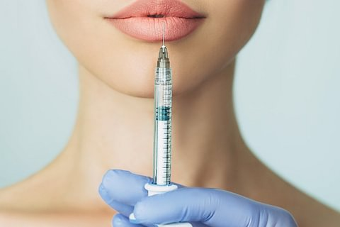 Treatment with Filler (Hyaluron)