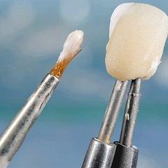 Zahnmodell - Dentaltechnik G.