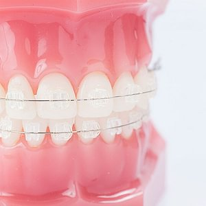 festsitzende Keramik-Zahnspange