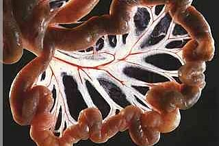 Nettoyage de l'intestin grêle