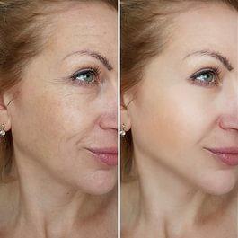 Hautfleckenentfernung