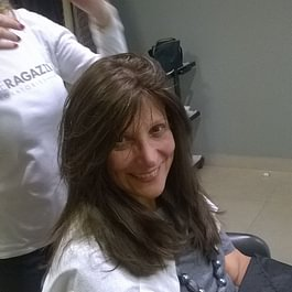 Alopecia femminile dopo il trattamento con il metodo CNC di CRLAb
