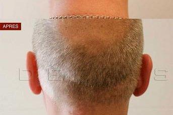Tricopigmentation