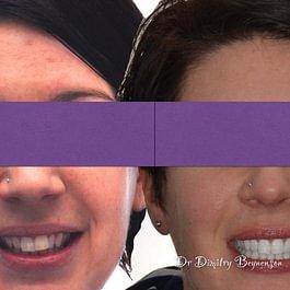 Zahnarzt & Dentalhygiene und Invisalign  in Bern