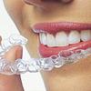 Orthodontie initiale