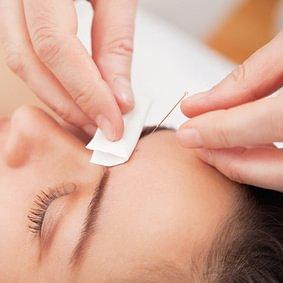 Studio di Agopuntura e Medicina Cinese