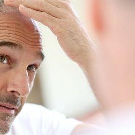 Therapie Haarverlust