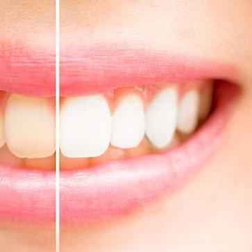 Alice Hensel - Médecin dentiste