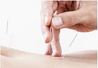Praxis für Traditionelle Chinesische Medizin TCM Becchio