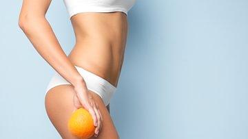 Cellulite erkennen
