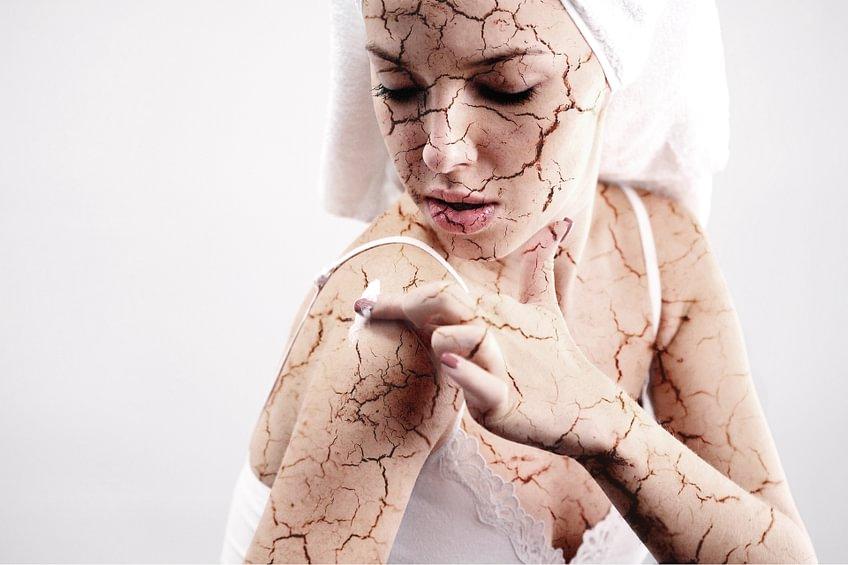 Trockene Haut01